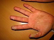 Haut Schält Sich An Händen Und Füßen Beim Kind